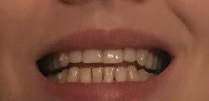 Sara teeth