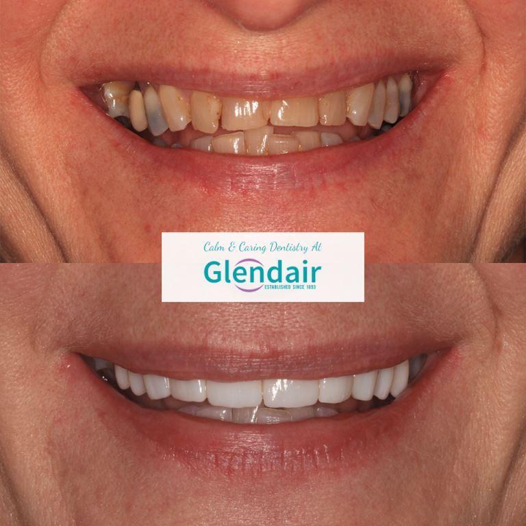 Smile Gallery at Glendair